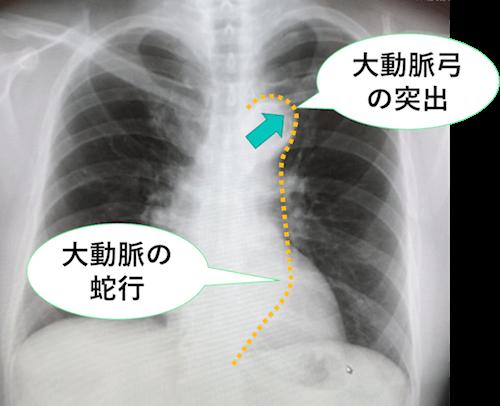 大動脈弓突出、下行大動脈の蛇行のレントゲン画像